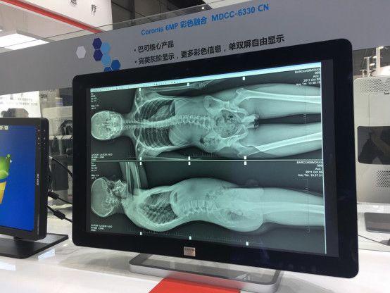 巴可亮相放射学学术大会 优质稳定守护医者仁心