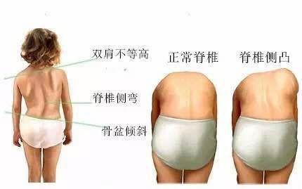 扩散~脊柱畸形患者在深圳这家医院做手术可获救助,1000个名额!最高5万元~