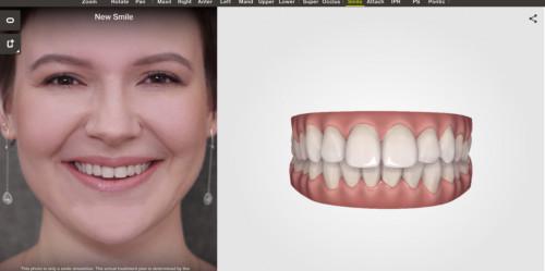 一个牙医眼中,中国隐形正畸十年发展之路